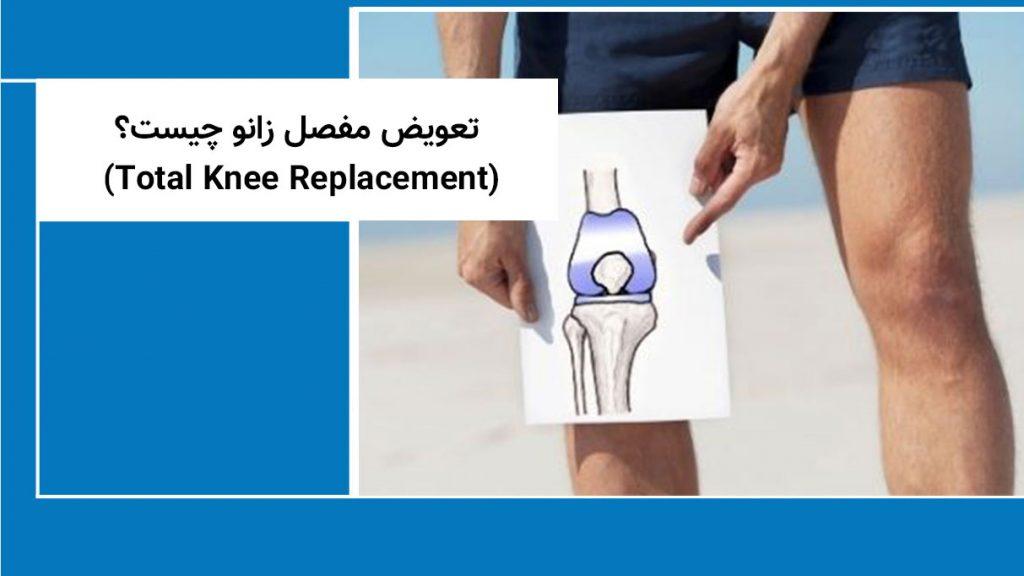 تعویض مفصل زانو چیست؟ (Total Knee Replacement)