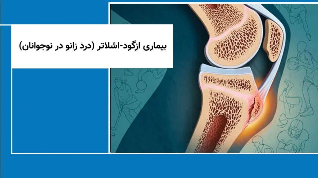 بیماری ازگود-اشلاتر (درد زانو در نوجوانان)