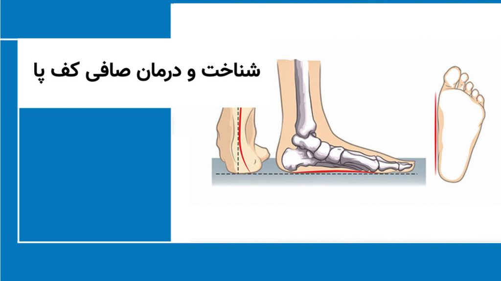 شناخت و درمان صافی کف پا