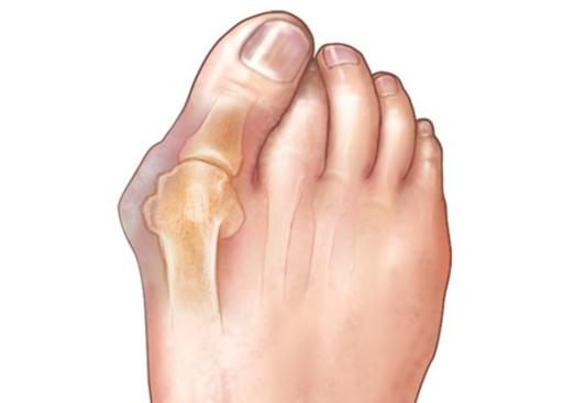 هالوکس والگوس، بونیون یا قوز شست پا چیست؟