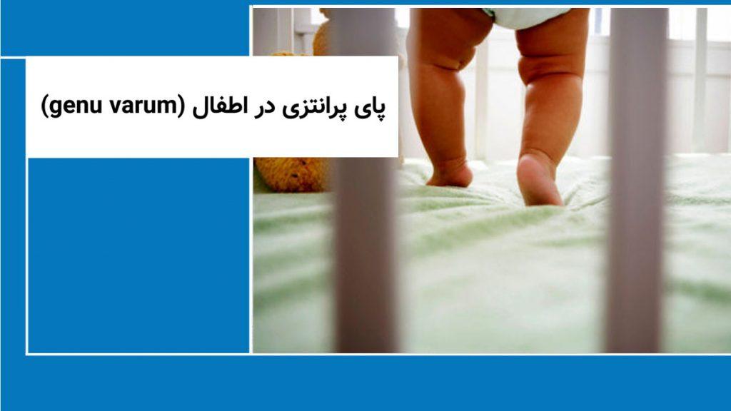 پای پرانتزی در اطفال (genu varum)