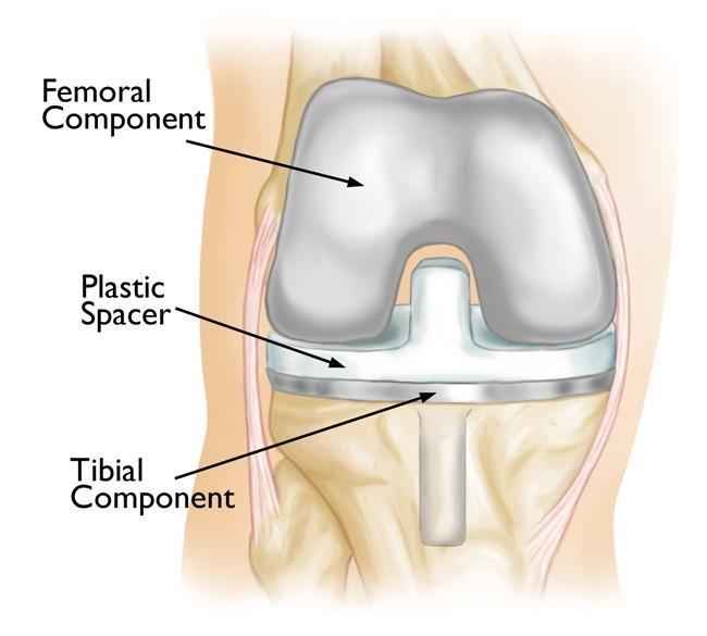 بخش های ایمپلنت