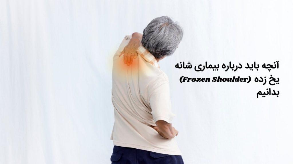 بیماری شانه یخ زده (frozen shoulder