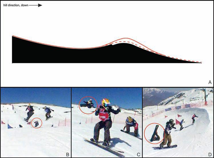 آسیب ورزش اسنوبرد