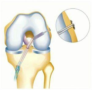 درمان جراحی