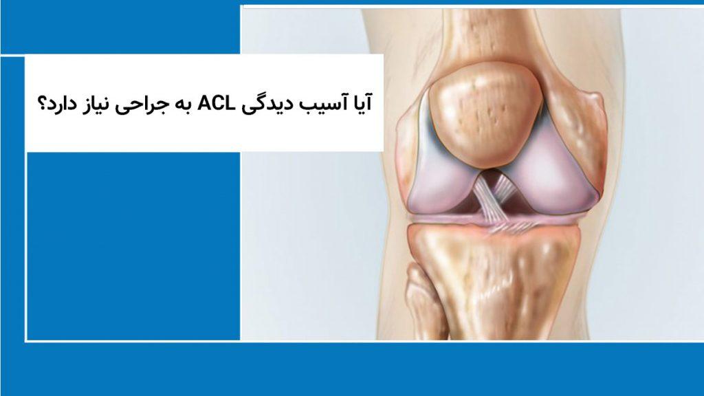 آیا آسیب دیدگی ACL به جراحی نیاز دارد؟