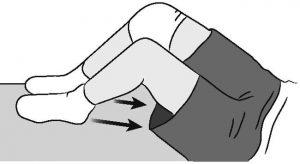 Hamstring contraction