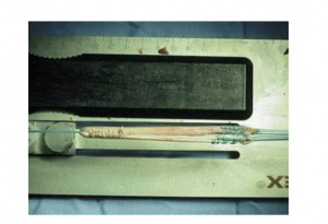 Hamstring tendon autograft prepared for ACL reconstruction.