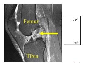 MRI از پارگی کامل ACL.