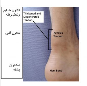 التهاب تاندون (تاندونیت)